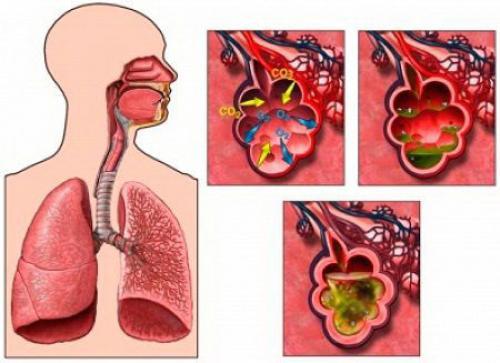 Пневмония. Что такое пневмония?