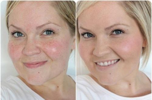 Как сделать идеальный тон лица без косметики.