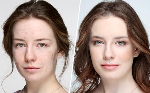 Как замаскировать постакне. Как правильно скрыть акне и постакне с помощью макияжа? Советы от Wobs!