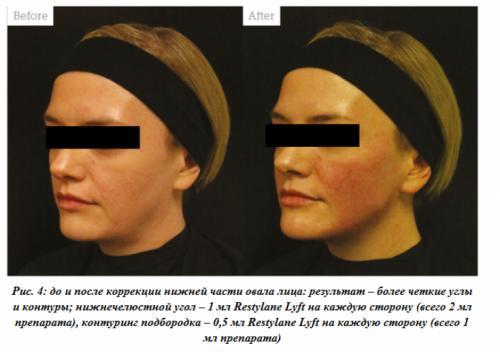 Коррекция формы лица филлерами. Третий этап: работа с предчелюстной зоной