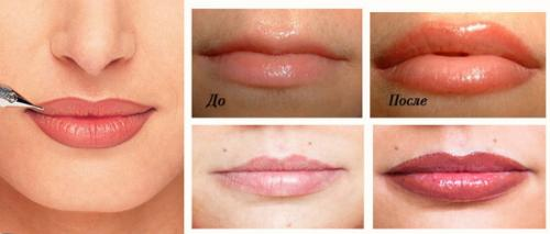 Подводка губ татуаж. Эффект от перманентного макияжа губ: фото до и после