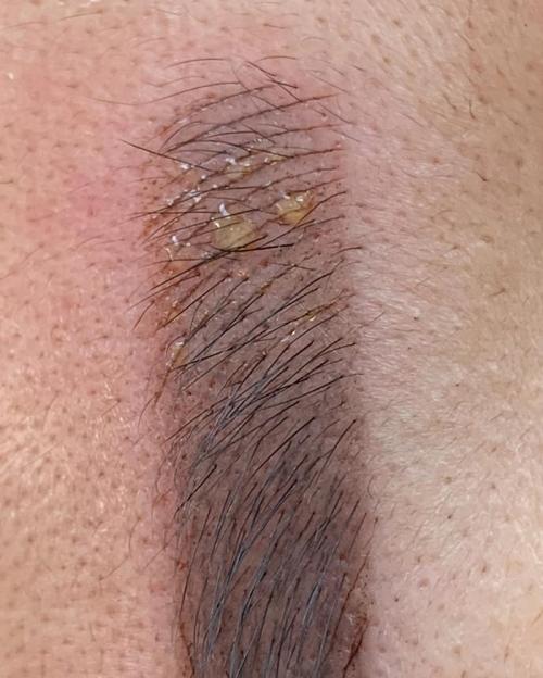 Заживление бровей после перманентного макияжа. Чем мазать брови после татуажа