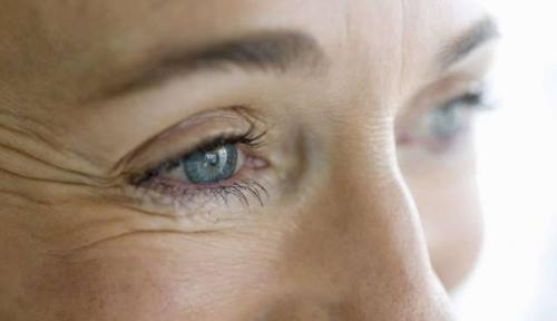 Эффект ботокса в домашних условиях вокруг глаз. Причины появления морщин вокруг глаз