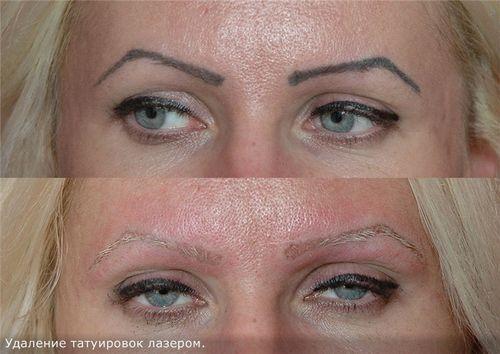 Кровоподтеки после лазерного удаления татуажа. Все про брови после удаление татуажа лазером: рекомендации косметолога