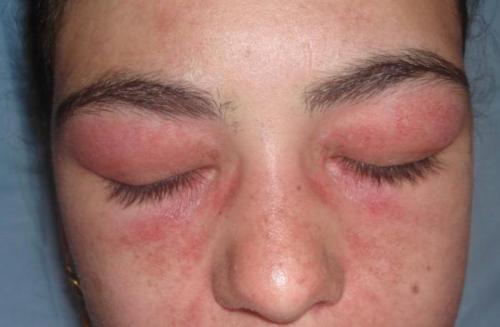 После наращивания ресниц отек. Симптомы аллергии