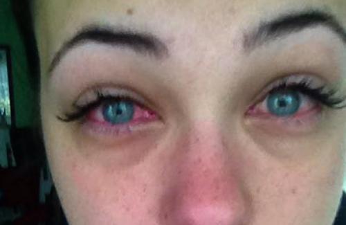Глаза чешутся после наращивания ресниц. Лечение аллергии на нарощенные ресницы