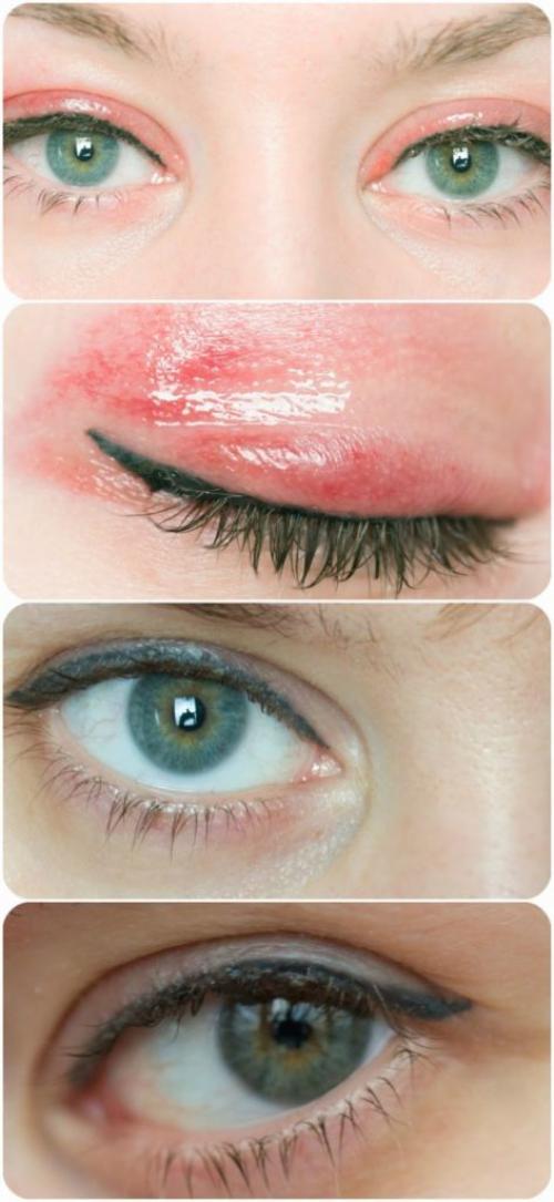 Как ухаживать за глазами после татуажа. Восстановление эпидермиса