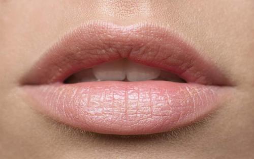 Как быстро снять отек с губ после гиалуроновой кислоты. Причины появления отека после процедуры увеличения губ