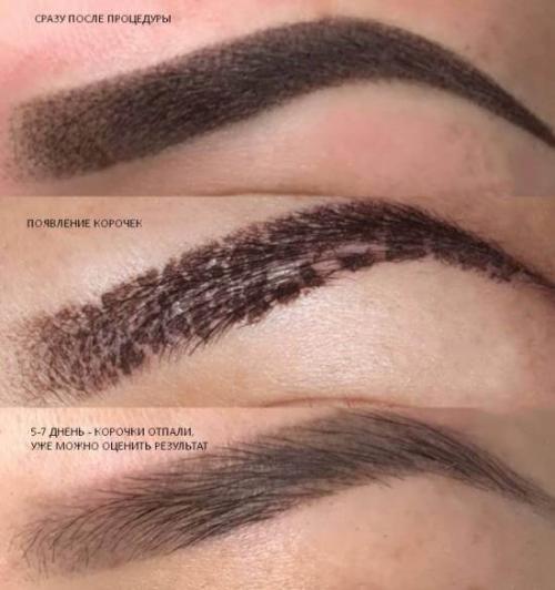 Перманентный макияж корочки. Процесс заживления