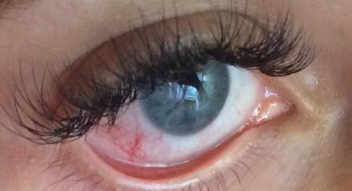 Вредно ли наращивать ресницы для глаз. Вредно ли наращивать ресницы – мой опыт