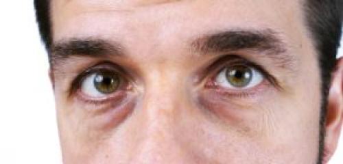 Как избавиться от мешков под глазами у мужчин. Причины