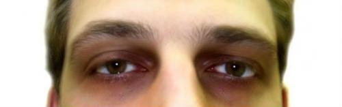 Почему под глазами черные круги у мужчин причины и лечение. Причины появления темных кругов