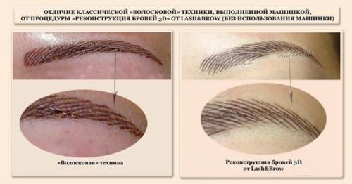 Перманентный макияж бровей фото до и после. Виды перманентного макияжа бровей