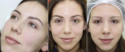 Перманентный макияж бровей фото до и после. Перманентный макияж бровей: что это такое