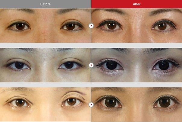 Почему у людей разные глаза? - Простые ответы Сделать форму глаз как у азиатов