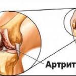 Как устранить артрит.