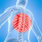 Меры профилактики и лечения - остеохондроз позвоночника.