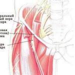 Упражнения при невралгии наружного кожного нерва бедра.